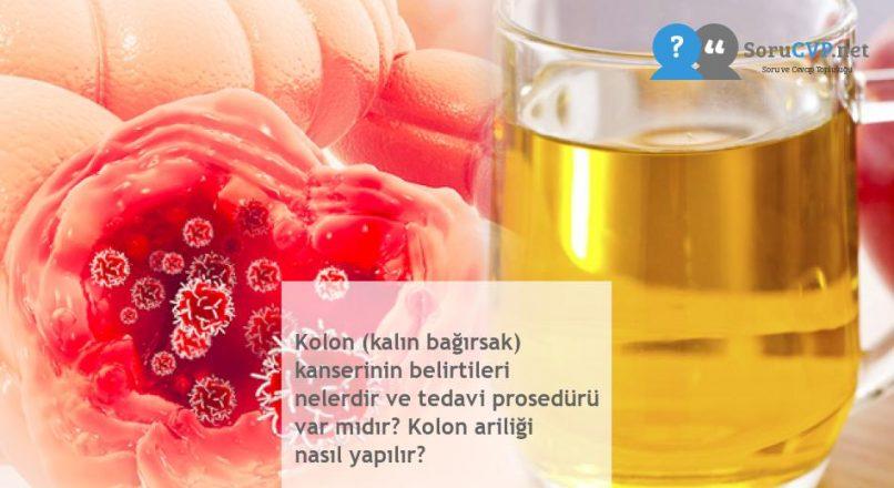 Kolon (kalın bağırsak) kanserinin belirtileri nelerdir ve tedavi prosedürü var mıdır? Kolon ariliği nasıl yapılır?