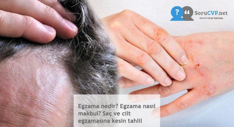 Egzama nedir? Egzama nasıl makbul? Saç ve cilt egzamasına kesin tahlil