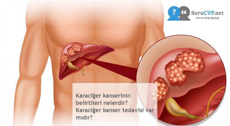 Karaciğer kanserinin belirtileri nelerdir? Karaciğer kanser tedavisi var mıdır?