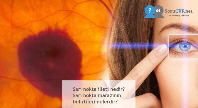 Sarı nokta illeti nedir? Sarı nokta marazının belirtileri nelerdir?