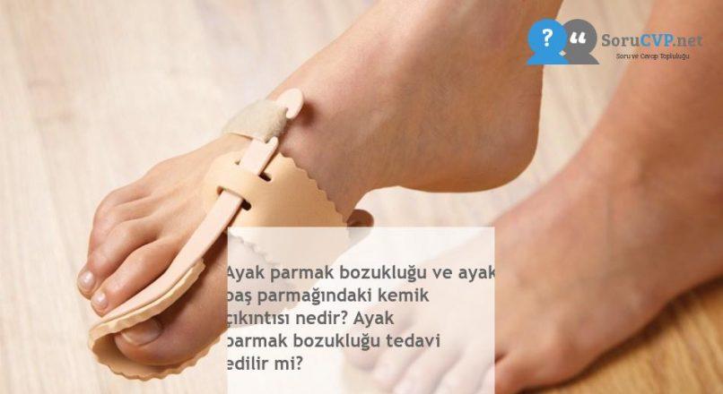 Ayak parmak bozukluğu ve ayak baş parmağındaki kemik çıkıntısı nedir? Ayak parmak bozukluğu tedavi edilir mi?