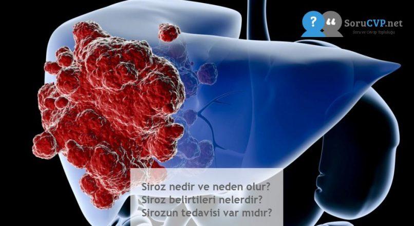 Siroz nedir ve neden olur? Siroz belirtileri nelerdir? Sirozun tedavisi var mıdır?