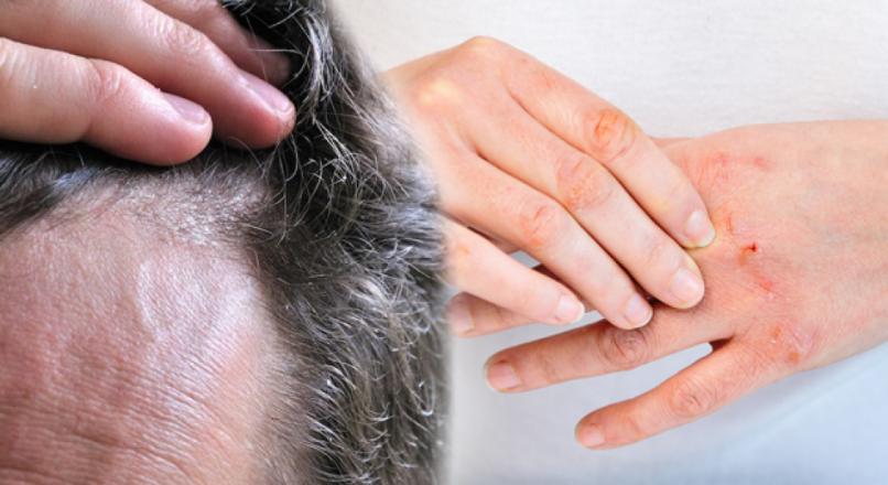 Atopik Dermatit (Egzama) nedir? Egzama en kolay nasıl makbul? Saç ve cilt egzaması…
