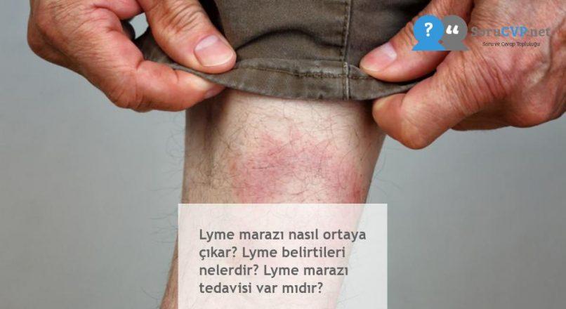 Lyme marazı nasıl ortaya çıkar? Lyme belirtileri nelerdir? Lyme marazı tedavisi var mıdır?