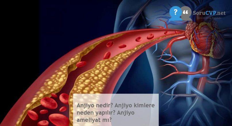 Anjiyo nedir? Anjiyo kimlere neden yapılır? Anjiyo ameliyat mı?