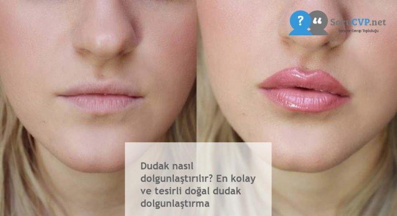 Dudak nasıl dolgunlaştırılır? En kolay ve tesirli doğal dudak dolgunlaştırma
