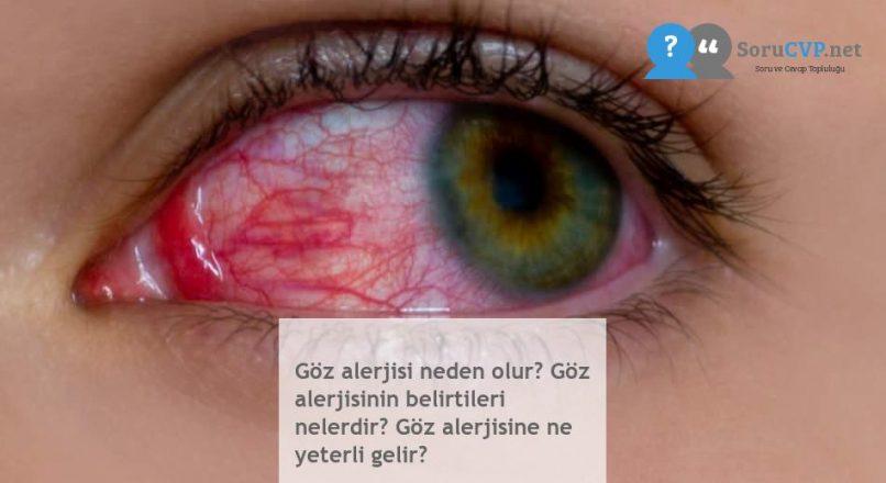 Göz alerjisi neden olur? Göz alerjisinin belirtileri nelerdir? Göz alerjisine ne yeterli gelir?