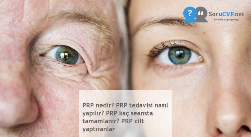 PRP nedir? PRP tedavisi nasıl yapılır? PRP kaç seansta tamamlanır? PRP cilt yaptıranlar