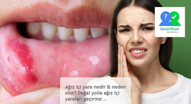 Ağız içi yara nedir & neden olur? Doğal yolla ağız içi yaraları geçirme…