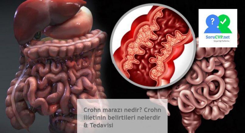 Crohn marazı nedir? Crohn illetinin belirtileri nelerdir & Tedavisi