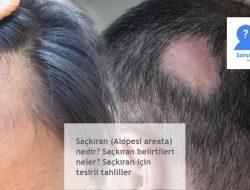 Saçkıran (Alopesi areata) nedir? Saçkıran belirtileri neler? Saçkıran için tesirli tahliller